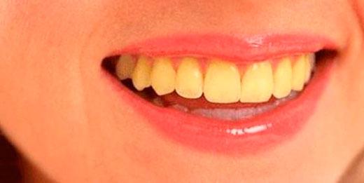 Как сделать зубы желтыми