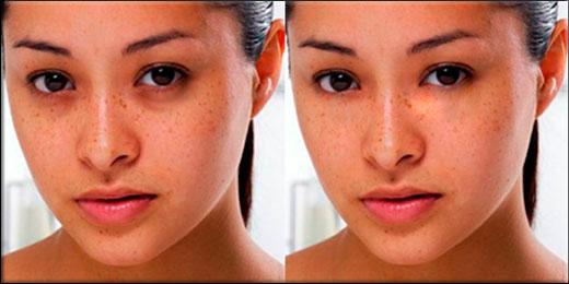 Как можно легко убрать синяки под глазами в фотошопе